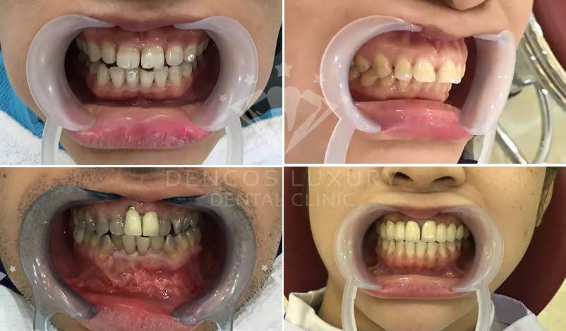 bọc răng sứ thẩm mỹ 1