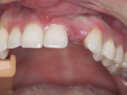 cay-ghep-implant-2