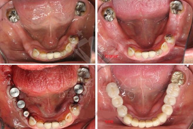 Kết quả cấy ghép implant 2
