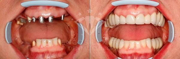 Kết quả cấy ghép implant 3