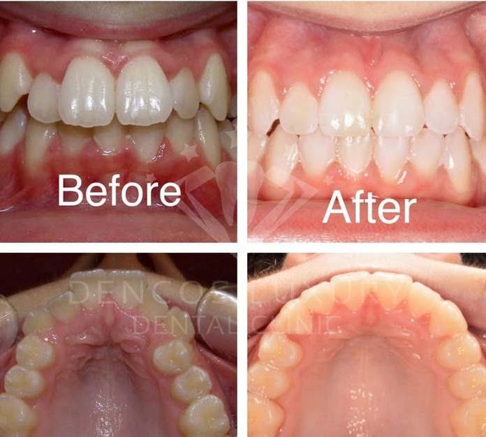 niềng răng trước và sau 7