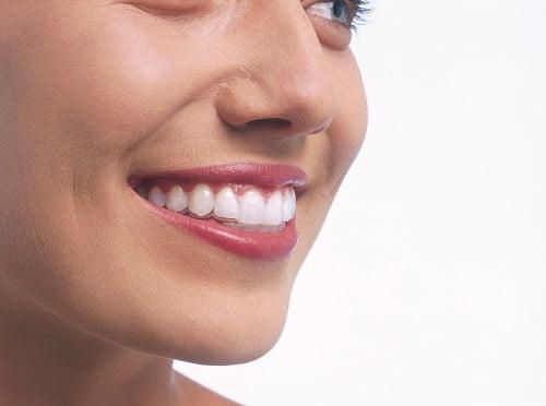 niềng răng trong suốt 4