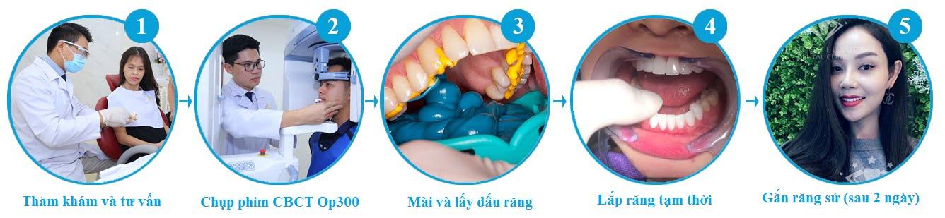 bọc răng sứ thẩm mỹ 4