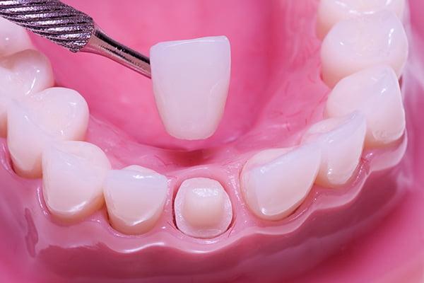 bọc răng sứ có đau không