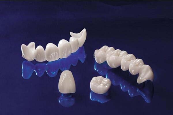 Bọc răng sứ ở đâu tốt 4