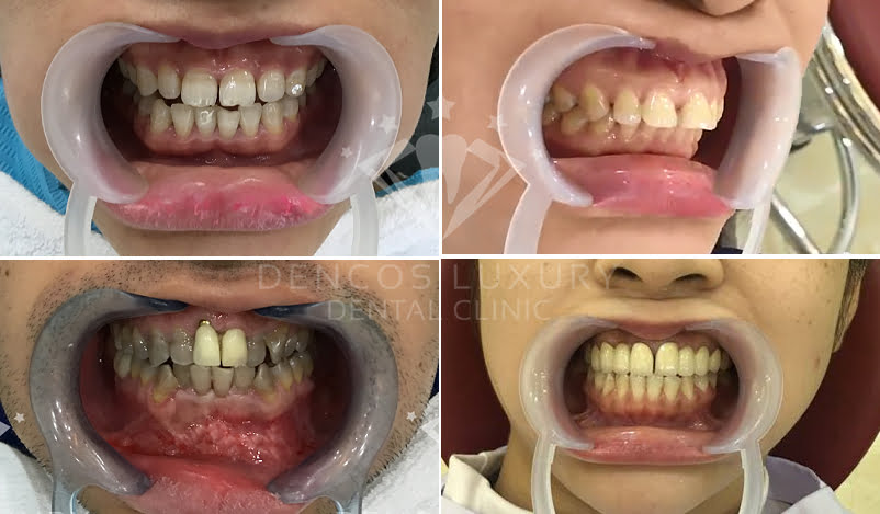 Bọc răng sứ thẩm mỹ công nghệ 2in1