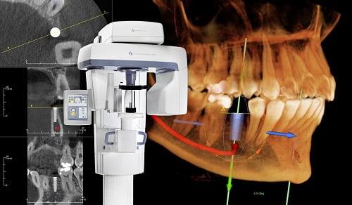 cay-ghep-implant-3