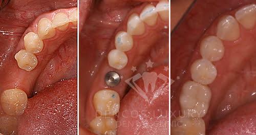 Kết quả cấy ghép implant 1