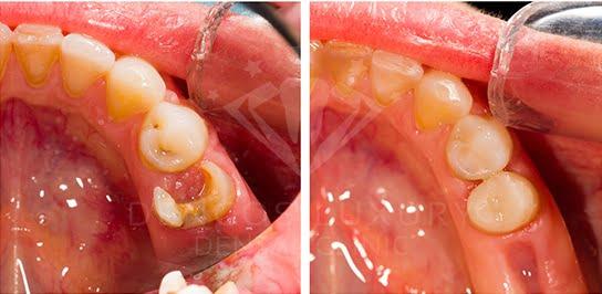 Kết quả khách hàng điều trị sâu răng