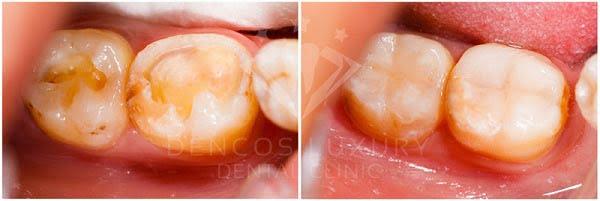 chữa sâu răng tại Dencos Luxury