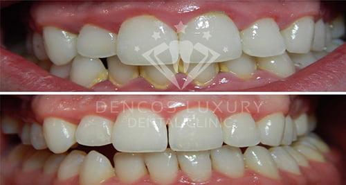 Lấy cao răng tại nha khoa quốc tế Dencos Luxuyr