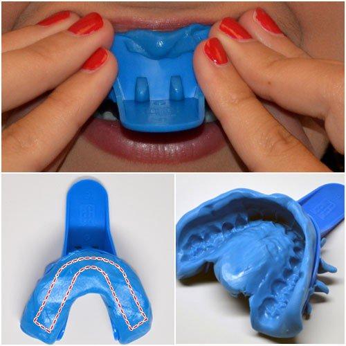 Dụng cụ lấy dấu răng dể thiết kế máng tẩy