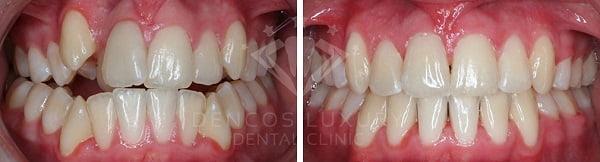 niềng răng trước và sau 3