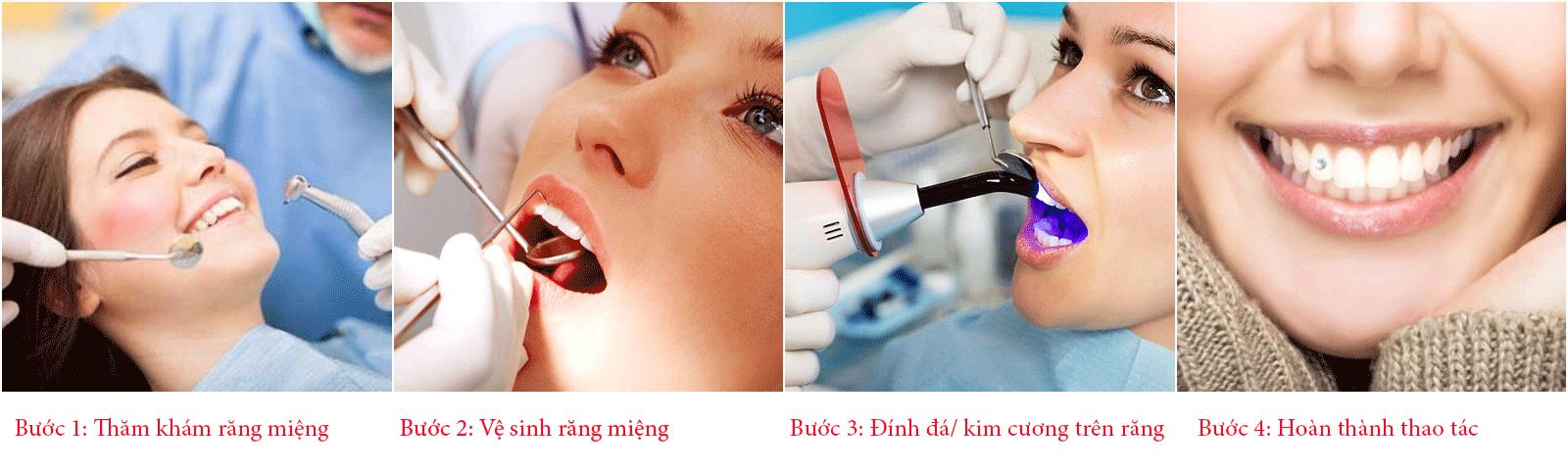 răng đính đá 3