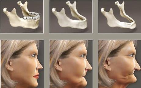 cấy ghép xương hàm 2