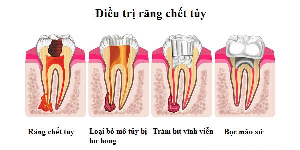dieu-tri-viem-tuy-rang-3