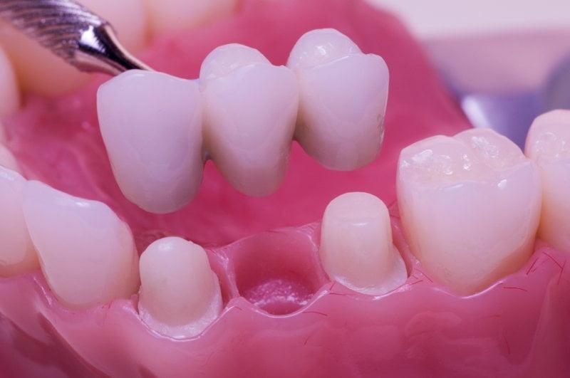 Làm cầu răng sứ