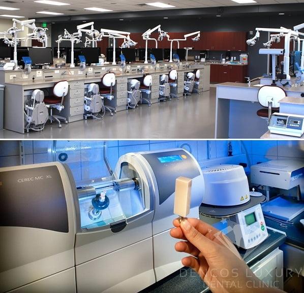 phòng CAD/CAM ở nha khoa Dencos Luxury uy tín tại hà nội