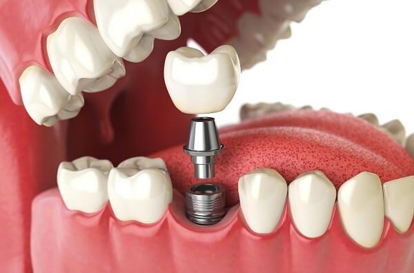 biến chứng khi thực hiện implant