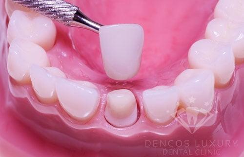 có nên chụp răng sứ không 2