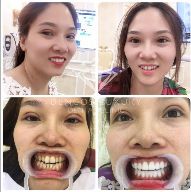 bọc mão răng sứ 8