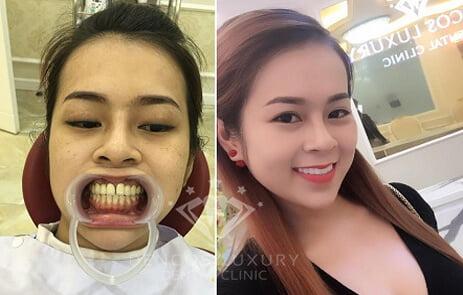 bọc mão răng sứ 9