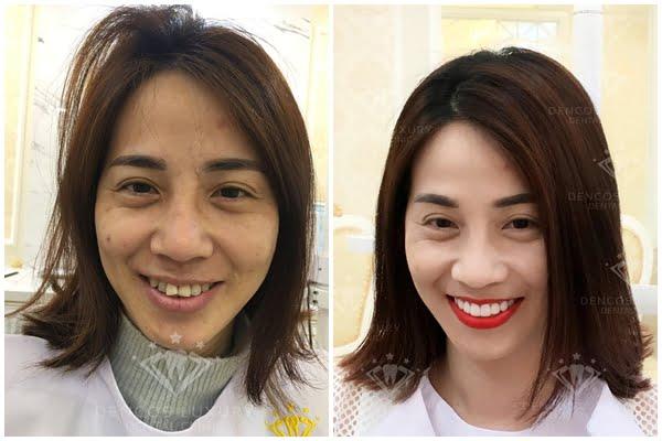 cách chăm sóc răng sứ titan 2
