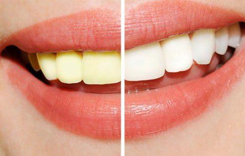 cách làm trắng răng tại nhà