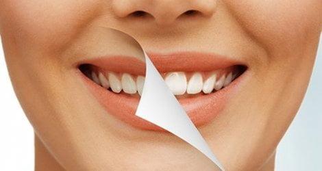 lấy cao răng bằng đường nâu 2