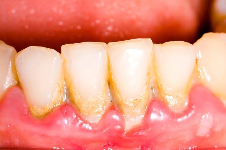 Lấy cao răng hà nội