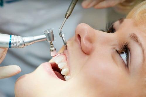 quy trình lấy cao răng 4