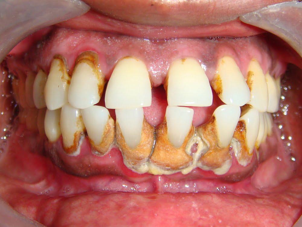 có nên lấy cao răng thường xuyên không 1