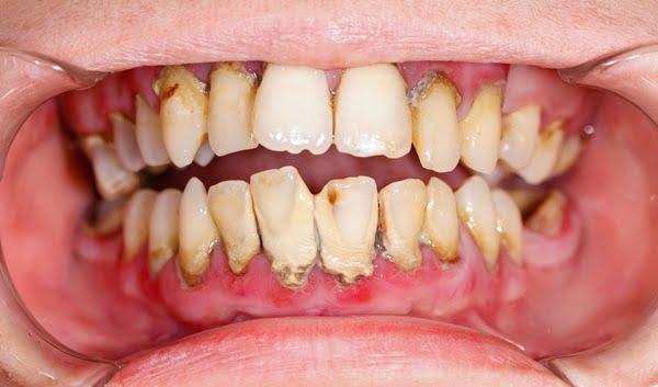 Tư vấn có nên lấy cao răng thường xuyên hay không ?