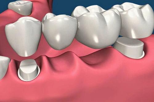 phương pháp làm cầu răng sứ thẩm mỹ 1