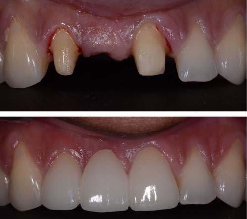 phương pháp làm cầu răng sứ thẩm mỹ 3
