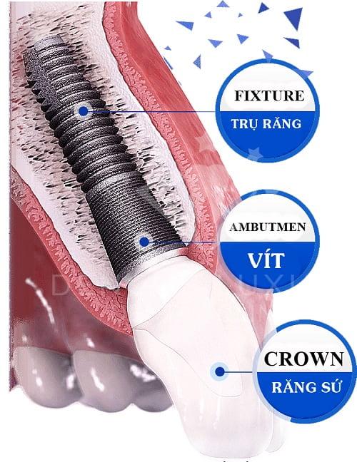 trong-rang-implant-o-dau-tot-3