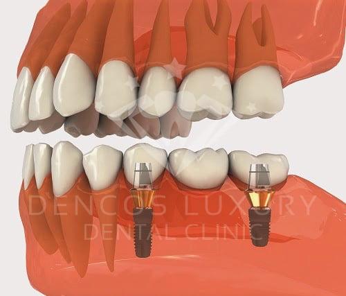 cay-ghep-rang-implant-co-dau-khong-2
