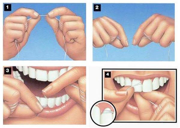 Chỉ nha khoa là gì & Cách sử dụng làm răng SẠCH bóng chỉ sau 2' 4