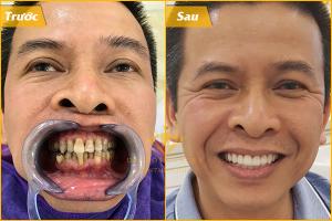 bọc răng sứ ở đâu tốt 1