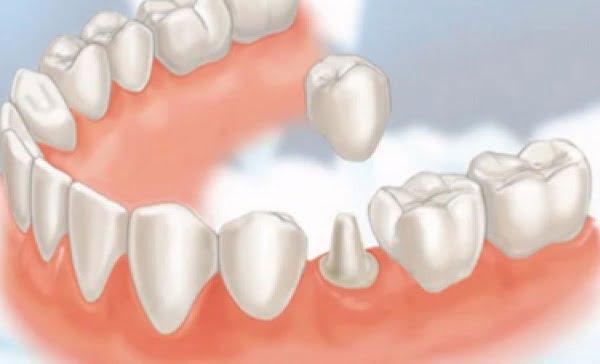 bọc mão răng sứ 4