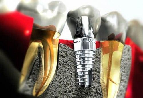 có nên trồng răng implant 1