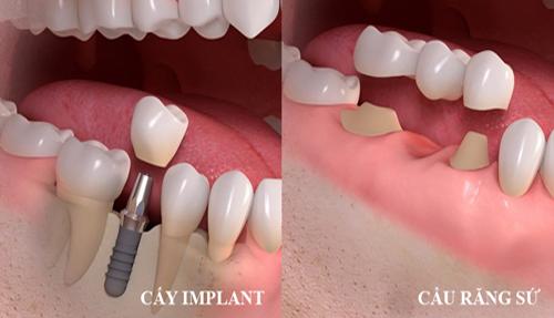 có nên trồng răng implant 2