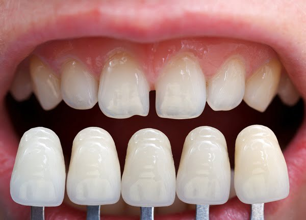 Kết quả hình ảnh cho phù hợp với cơ thể người, đảm bảo không gây răng sứ