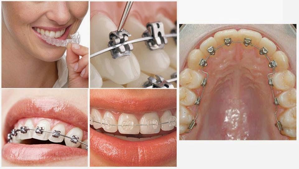 niềng răng cho trẻ em giá bao nhiêu 1