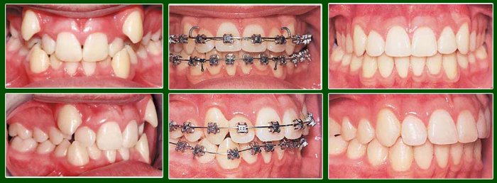 niềng răng cho trẻ em giá bao nhiêu 3