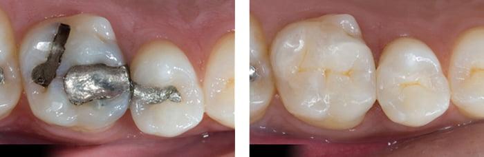 hàn răng ở đâu tốt hà nội