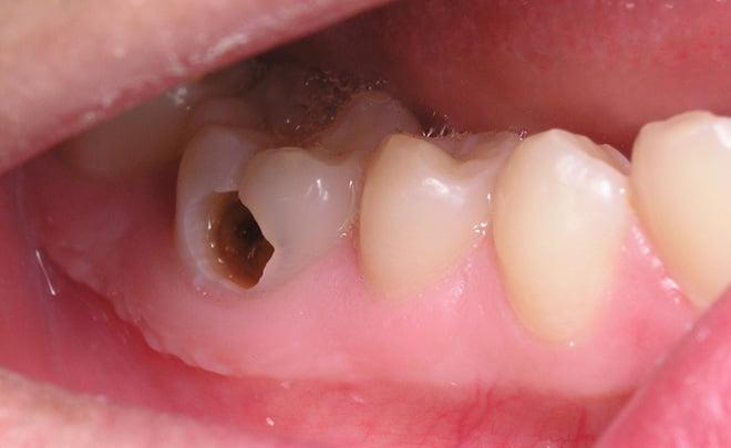 Răng sâu nặng tạo thành lỗ sâu nghiêm trọng cần hàn trám ngay để điều trị sớm sâu răng