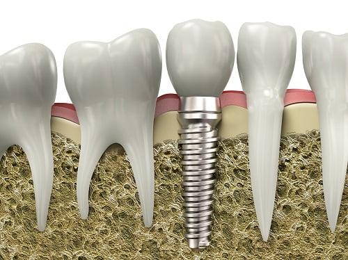 trong-rang-implant-o-dau-tot