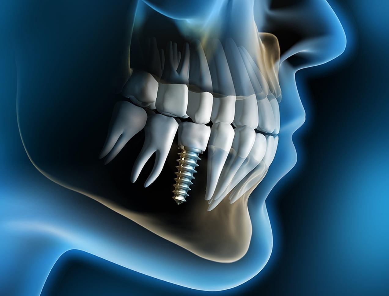 cay-ghep-rang-implant-co-dau-khong