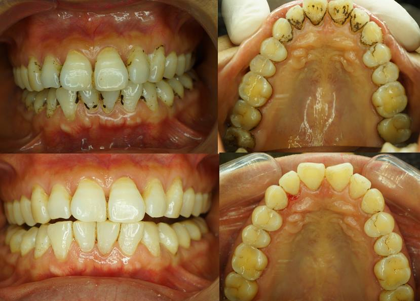 lấy cao răng tại nhà 2